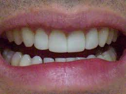 The Link Between Dry Mouth (Xerostomia) And Bad Breath